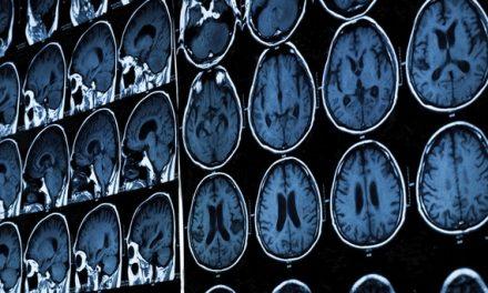 Why Brain Scans Cannot Show That Someone Will Become a Jihadist – Dean Burnett